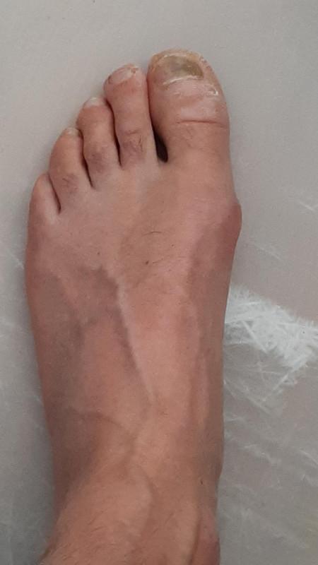 Image 2 from Jörg of La Sportiva - Testarossa - Climbing shoes