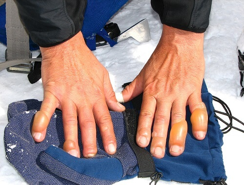 Chilblains are serious frostbite